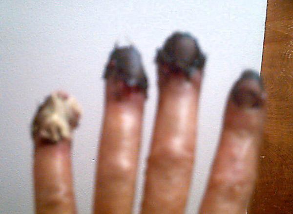 fingers of doom part 1